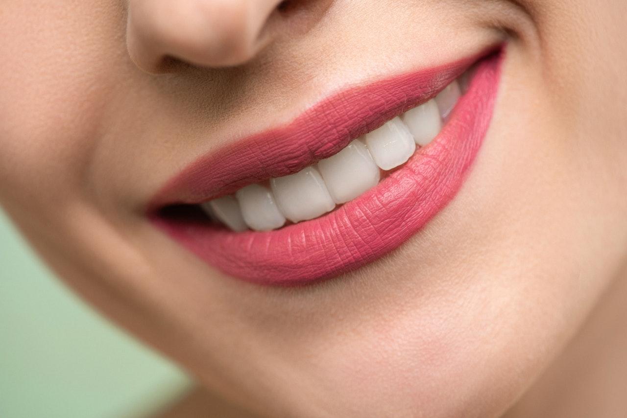 best teeth whitening gel